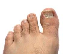 fungal-toenail